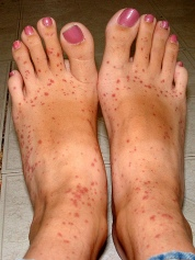 Clindamycin rash